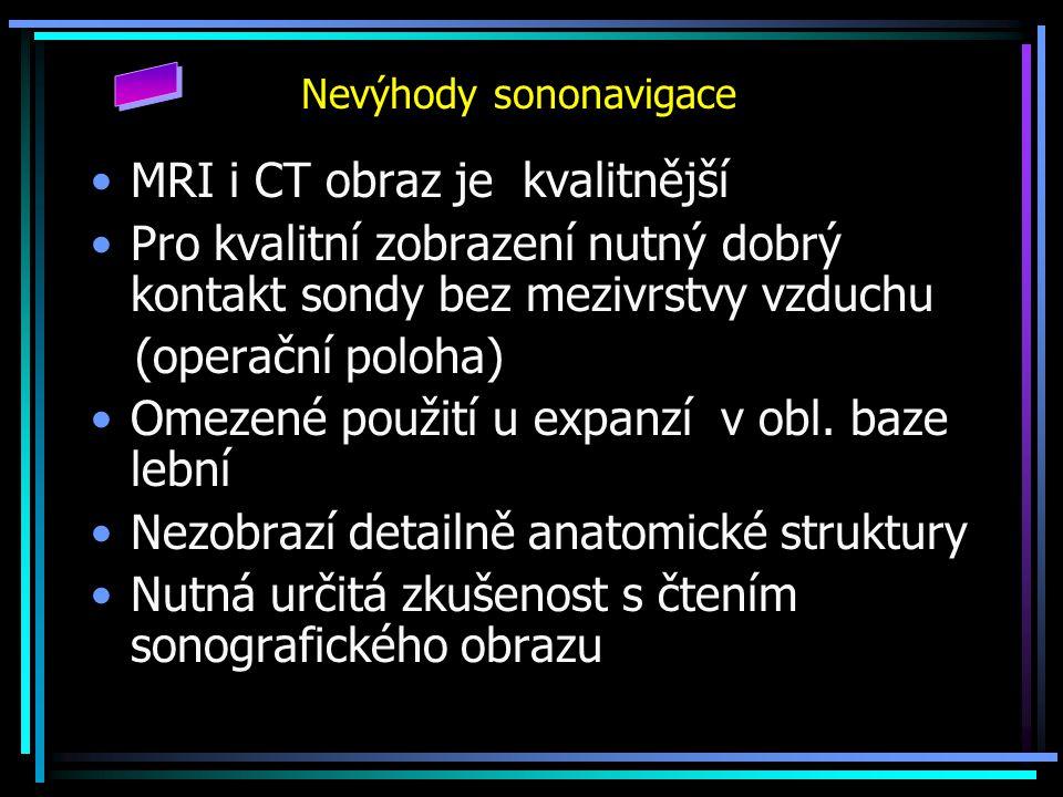 Nevýhody sononavigace MRI i CT obraz je kvalitnější Pro kvalitní zobrazení nutný dobrý kontakt sondy bez mezivrstvy vzduchu (operační poloha) Omezené