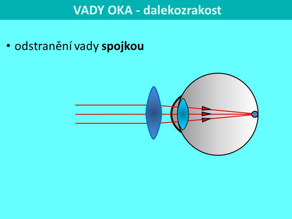 VADY OKA - dalekozrakost odstranění vady spojkou