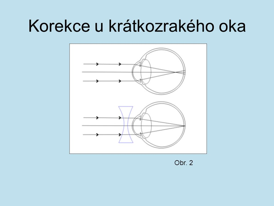 Korekce u krátkozrakého oka Obr. 2