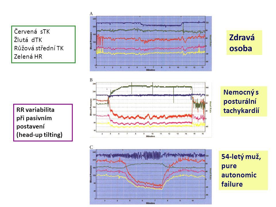 Červená sTK Žlutá dTK Růžová střední TK Zelená HR RR variabilita při pasivním postavení (head-up tilting) Zdravá osoba Nemocný s posturální tachykardií 54-letý muž, pure autonomic failure