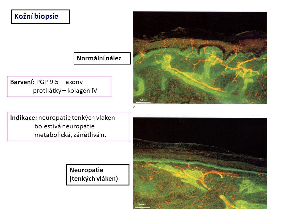 Kožní biopsie Normální nález Neuropatie (tenkých vláken) Barvení: PGP 9.5 – axony protilátky – kolagen IV Indikace: neuropatie tenkých vláken bolestivá neuropatie metabolická, zánětlivá n.