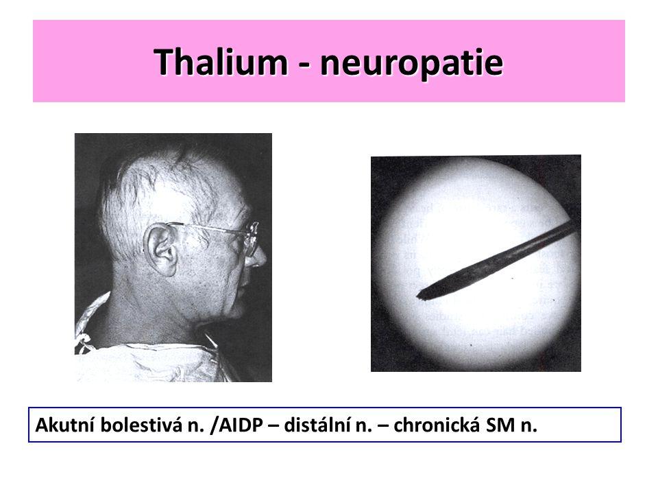 Thalium - neuropatie Akutní bolestivá n. /AIDP – distální n. – chronická SM n.