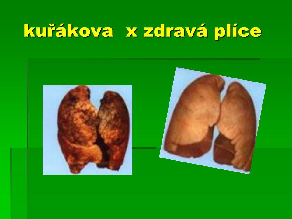 kuřákova x zdravá plíce kuřákova x zdravá plíce