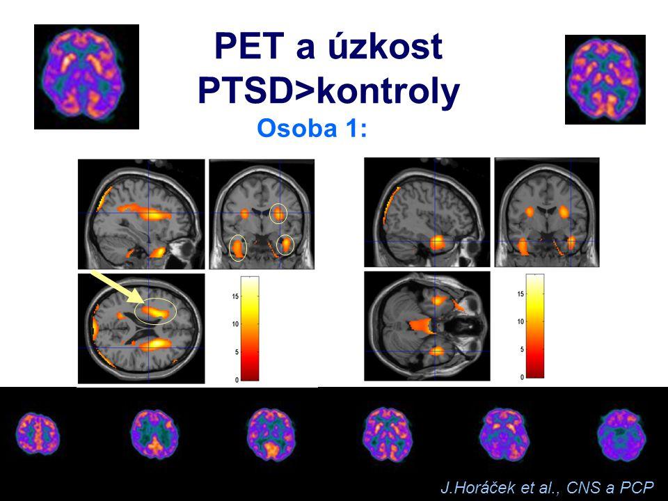 Úzkostné poruchy neurobiologie   SAD, GAD – kůra? Amygdala, BNST   PTSD – hipokampus   PD – PAG, NRD   OCD – bazální ganglia