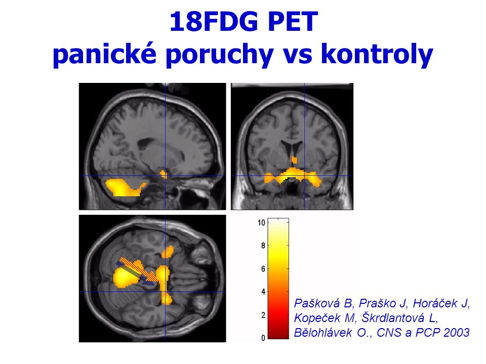PET a úzkost PTSD>kontroly Osoba 1: J.Horáček et al., CNS a PCP