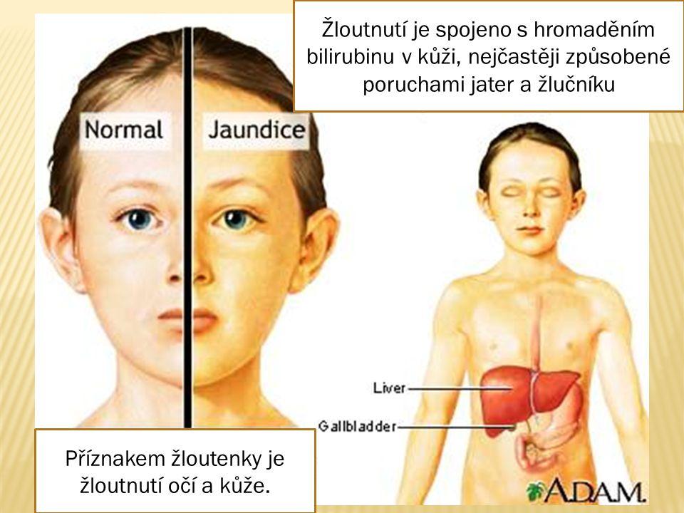 Žloutnutí je spojeno s hromaděním bilirubinu v kůži, nejčastěji způsobené poruchami jater a žlučníku Příznakem žloutenky je žloutnutí očí a kůže.