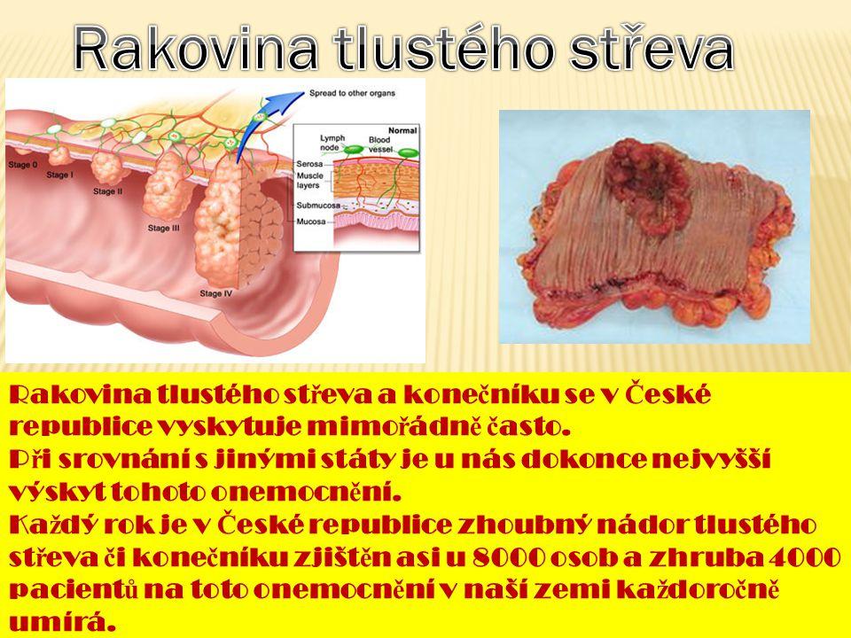 Rakovina - zhoubný nádor vzniká rychlým nekontrolovaným množením abnormálních bun ě k. Nádorové bu ň ky se mohou z nádoru uvolnit a ší ř it se krevním