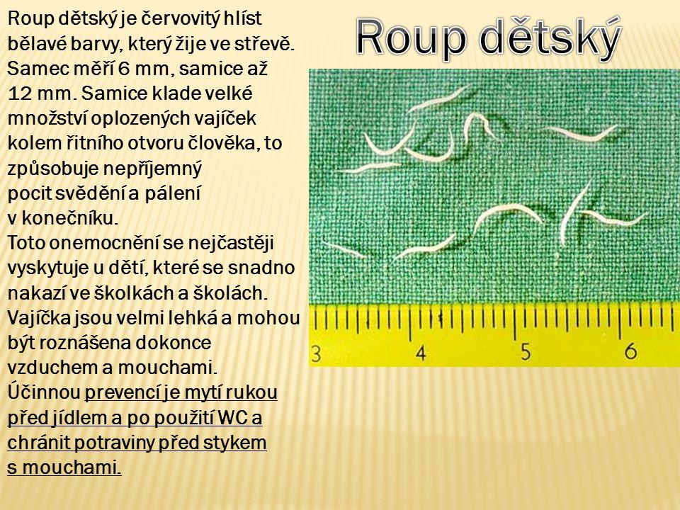 Roup dětský je červovitý hlíst bělavé barvy, který žije ve střevě. Samec měří 6 mm, samice až 12 mm. Samice klade velké množství oplozených vajíček ko