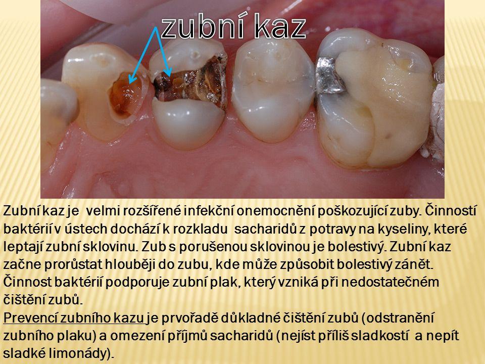 Zubní kaz je velmi rozšířené infekční onemocnění poškozující zuby. Činností baktérií v ústech dochází k rozkladu sacharidů z potravy na kyseliny, kter