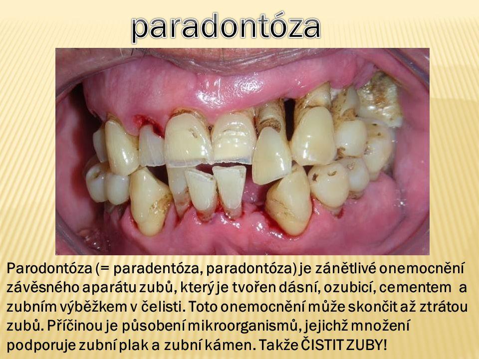 Parodontóza (= paradentóza, paradontóza) je zánětlivé onemocnění závěsného aparátu zubů, který je tvořen dásní, ozubicí, cementem a zubním výběžkem v