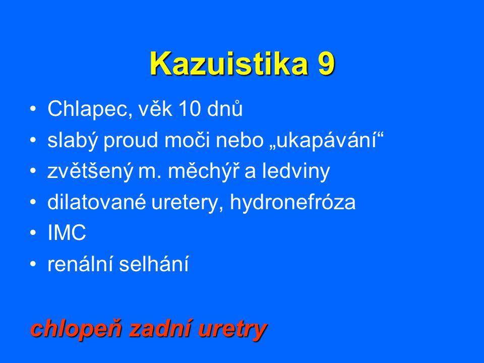 """Kazuistika 9 Chlapec, věk 10 dnů slabý proud moči nebo """"ukapávání"""" zvětšený m. měchýř a ledviny dilatované uretery, hydronefróza IMC renální selhání c"""