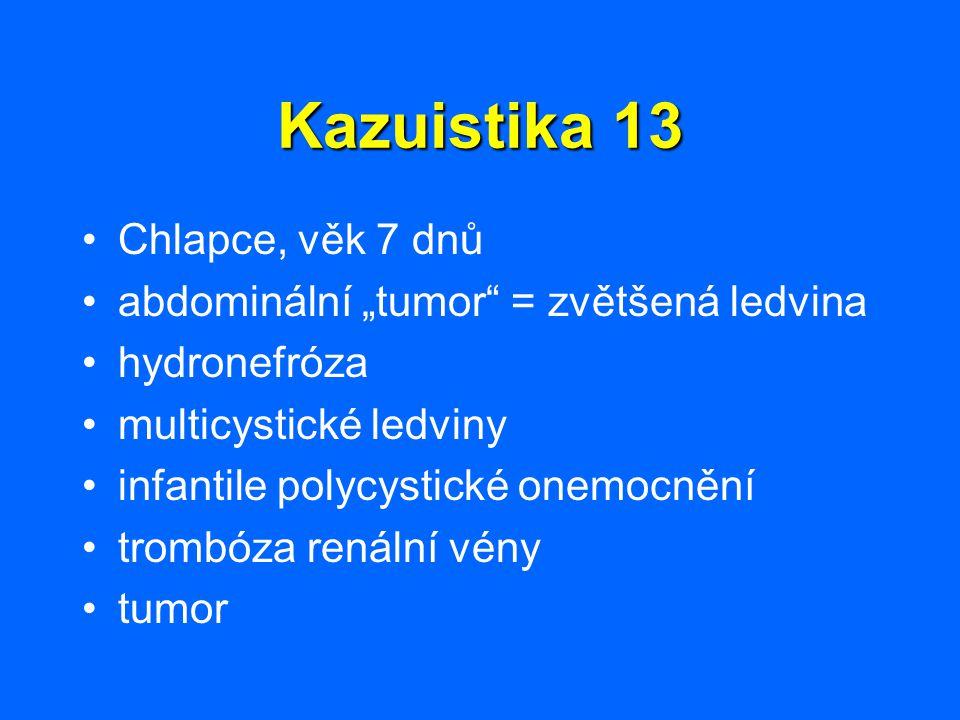 """Kazuistika 13 Chlapce, věk 7 dnů abdominální """"tumor"""" = zvětšená ledvina hydronefróza multicystické ledviny infantile polycystické onemocnění trombóza"""