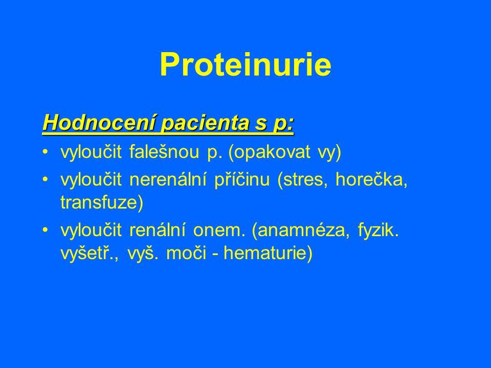 Proteinurie Hodnocení pacienta s p: vyloučit falešnou p. (opakovat vy) vyloučit nerenální příčinu (stres, horečka, transfuze) vyloučit renální onem. (