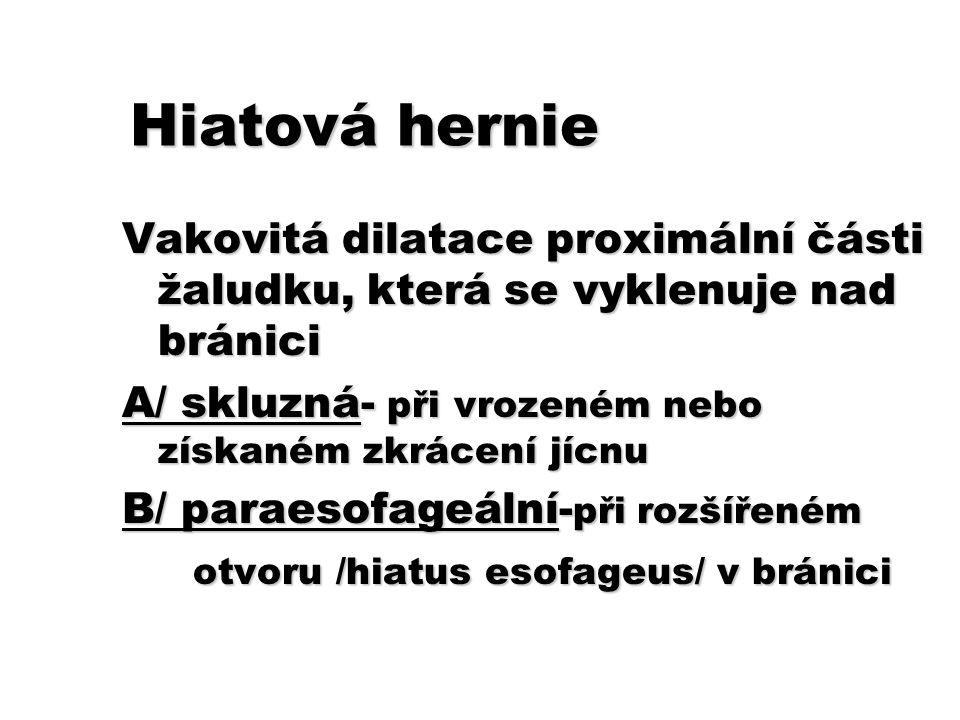 Hiatová hernie Vakovitá dilatace proximální části žaludku, která se vyklenuje nad bránici A/ skluzná- při vrozeném nebo získaném zkrácení jícnu B/ par