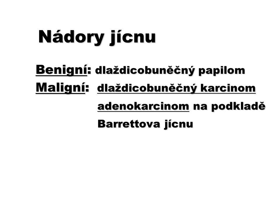Nádory jícnu Benigní: dlaždicobuněčný papilom Maligní: dlaždicobuněčný karcinom adenokarcinom na podkladě adenokarcinom na podkladě Barrettova jícnu B
