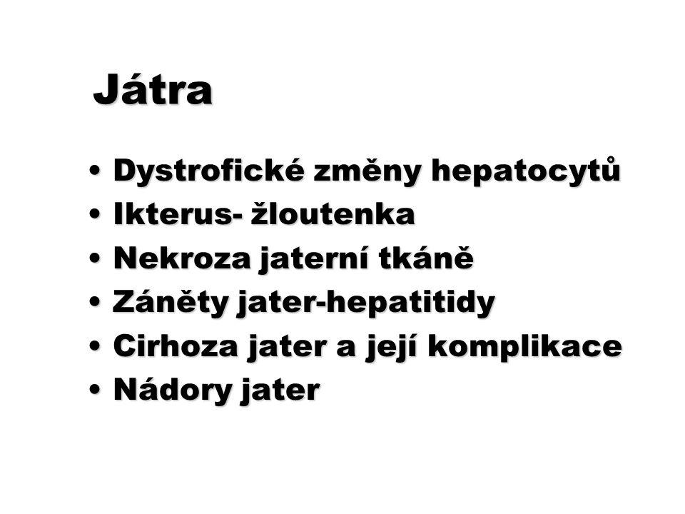 Játra Dystrofické změny hepatocytůDystrofické změny hepatocytů Ikterus- žloutenkaIkterus- žloutenka Nekroza jaterní tkáněNekroza jaterní tkáně Záněty