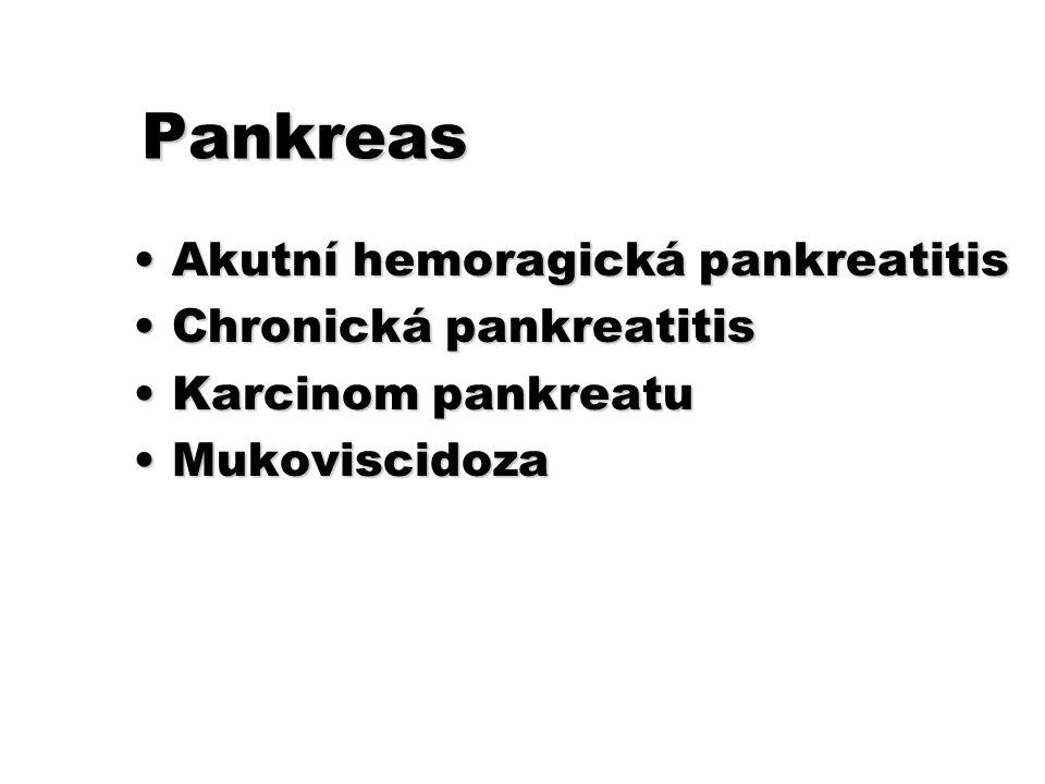 Pankreas Akutní hemoragická pankreatitisAkutní hemoragická pankreatitis Chronická pankreatitisChronická pankreatitis Karcinom pankreatuKarcinom pankre