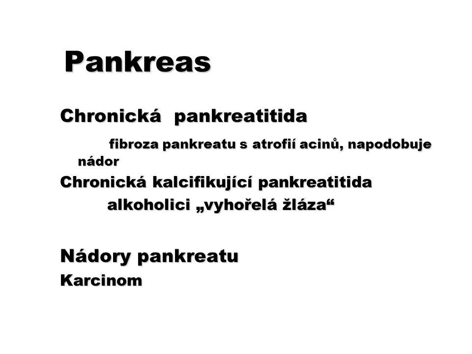 Pankreas Chronická pankreatitida fibroza pankreatu s atrofií acinů, napodobuje nádor fibroza pankreatu s atrofií acinů, napodobuje nádor Chronická kal