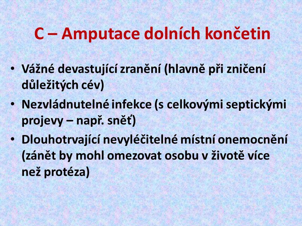 Amputační pahýl Odolný, výkonný, pohyblivý… Ovládání protézy závisí na délce pahýlu Bandážování pahýlu napomáhá jeho tvarování Oboustranná amputace komplikuje užívání protéz Zde úpravy vozíku (odstranění stupaček)