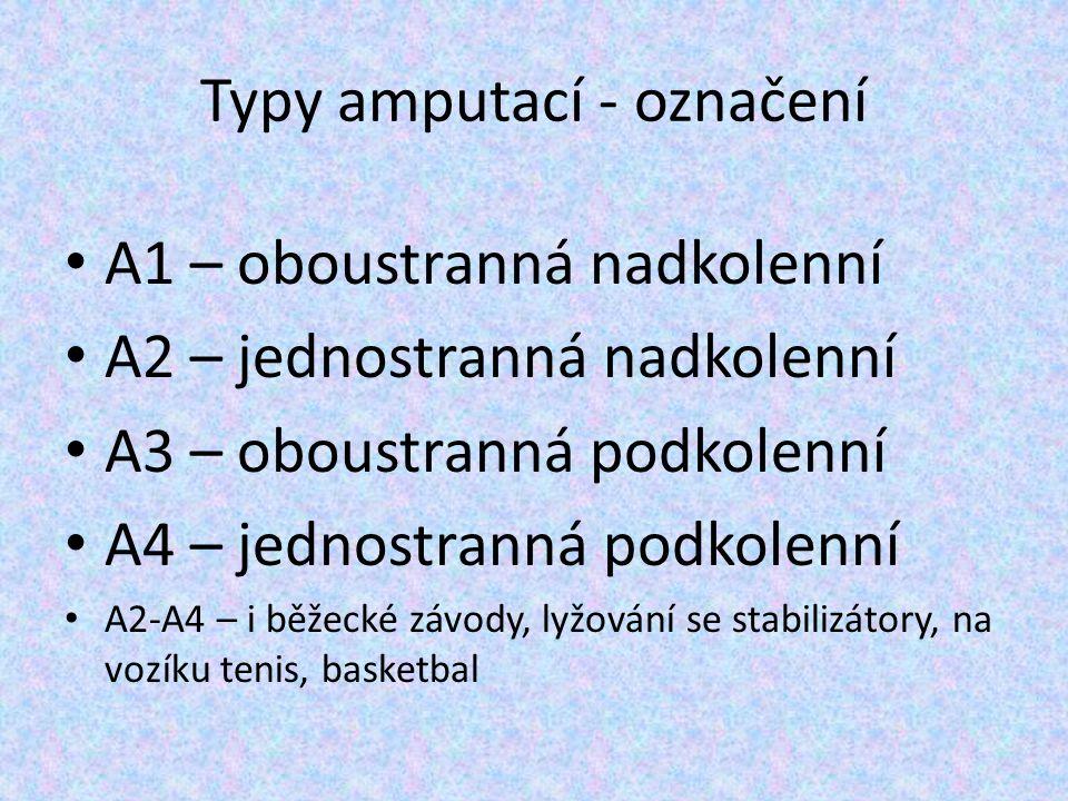 Typy amputací - označení A1 – oboustranná nadkolenní A2 – jednostranná nadkolenní A3 – oboustranná podkolenní A4 – jednostranná podkolenní A2-A4 – i b