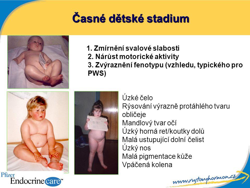 Časné dětské stadium 1. Zmírnění svalové slabosti 2. Nárůst motorické aktivity 3. Zvýraznění fenotypu (vzhledu, typického pro PWS) Úzké čelo Rýsování