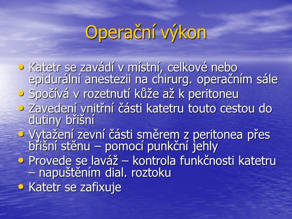 Operační výkon Katetr se zavádí v místní, celkové nebo epidurální anestezii na chirurg. operačním sále Katetr se zavádí v místní, celkové nebo epidurá