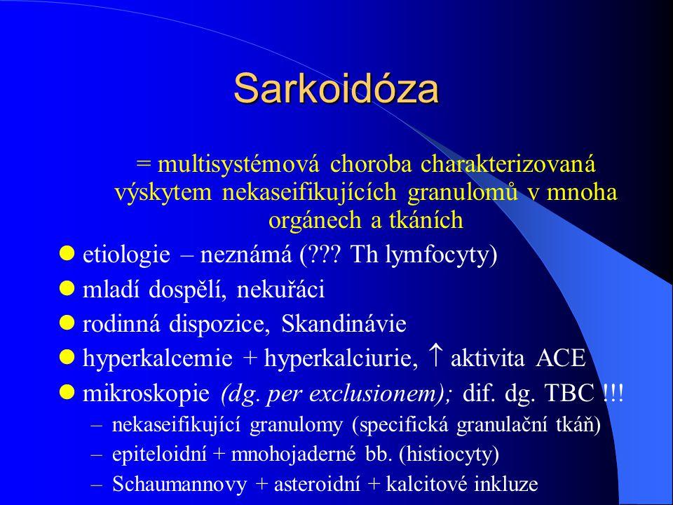 Sarkoidóza = multisystémová choroba charakterizovaná výskytem nekaseifikujících granulomů v mnoha orgánech a tkáních etiologie – neznámá (??? Th lymfo