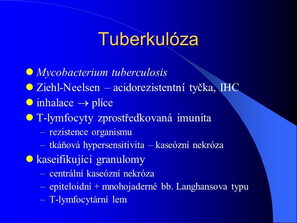 Tuberkulóza Mycobacterium tuberculosis Ziehl-Neelsen – acidorezistentní tyčka, IHC inhalace  plíce T-lymfocyty zprostředkovaná imunita –rezistence organismu –tkáňová hypersensitivita – kaseózní nekróza kaseifikující granulomy –centrální kaseózní nekróza –epiteloidní + mnohojaderné bb.