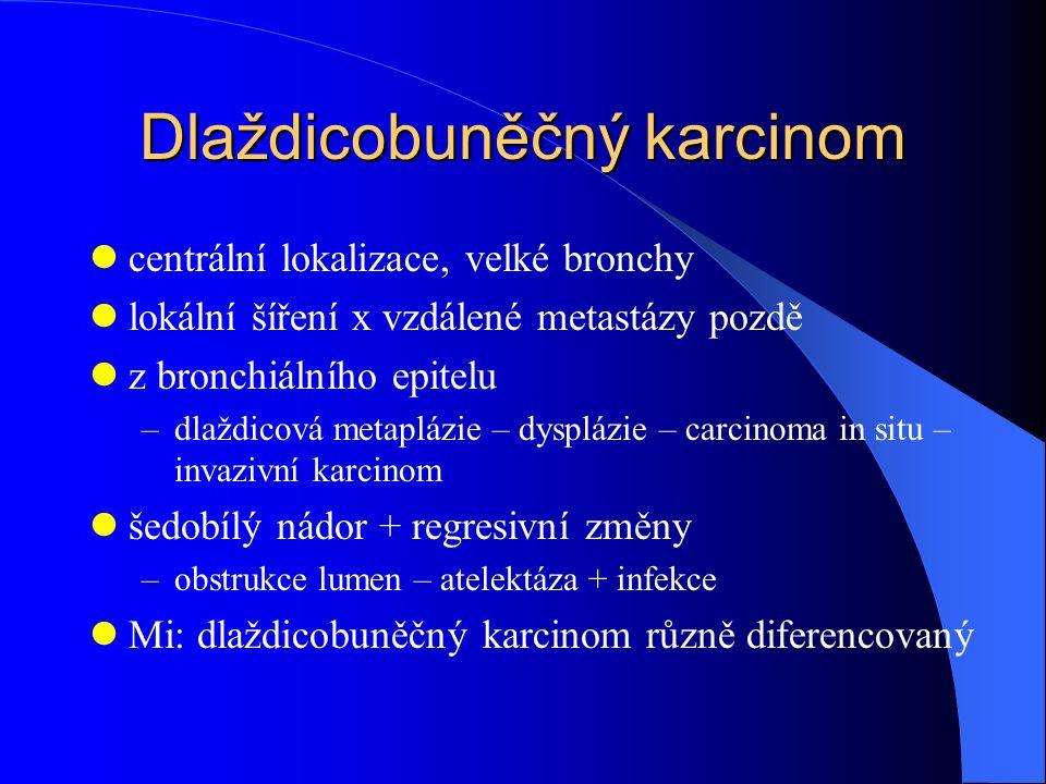 Dlaždicobuněčný karcinom centrální lokalizace, velké bronchy lokální šíření x vzdálené metastázy pozdě z bronchiálního epitelu –dlaždicová metaplázie – dysplázie – carcinoma in situ – invazivní karcinom šedobílý nádor + regresivní změny –obstrukce lumen – atelektáza + infekce Mi: dlaždicobuněčný karcinom různě diferencovaný