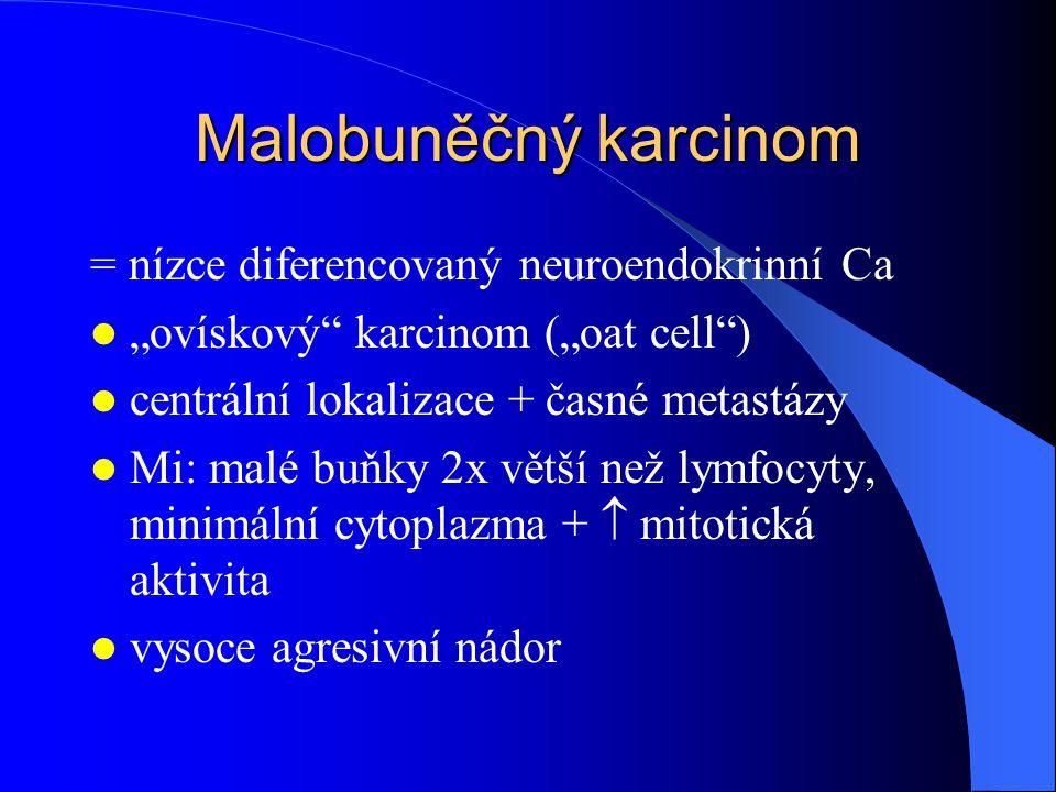 """Malobuněčný karcinom = nízce diferencovaný neuroendokrinní Ca """"ovískový karcinom (""""oat cell ) centrální lokalizace + časné metastázy Mi: malé buňky 2x větší než lymfocyty, minimální cytoplazma +  mitotická aktivita vysoce agresivní nádor"""