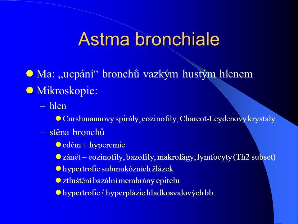 """Astma bronchiale Ma: """"ucpání"""" bronchů vazkým hustým hlenem Mikroskopie: –hlen Curshmannovy spirály, eozinofily, Charcot-Leydenovy krystaly –stěna bron"""