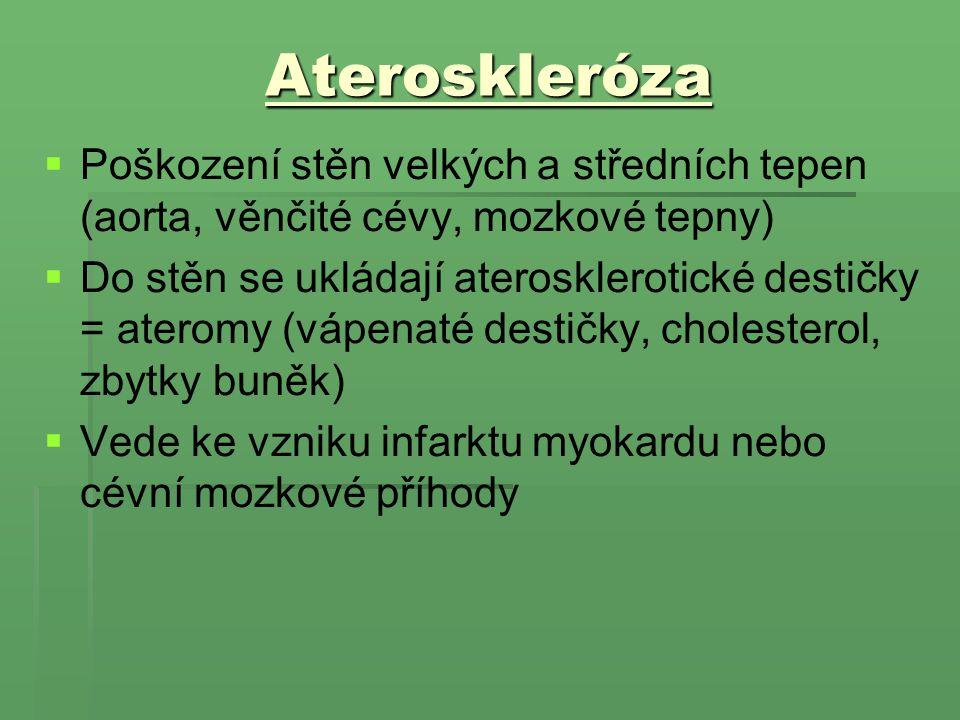 Ateroskleróza   Poškození stěn velkých a středních tepen (aorta, věnčité cévy, mozkové tepny)   Do stěn se ukládají aterosklerotické destičky = at