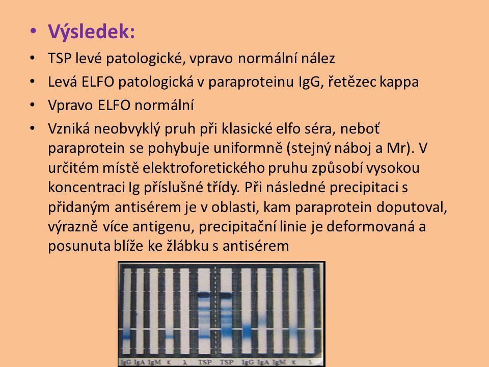 Výsledek: TSP levé patologické, vpravo normální nález Levá ELFO patologická v paraproteinu IgG, řetězec kappa Vpravo ELFO normální Vzniká neobvyklý pruh při klasické elfo séra, neboť paraprotein se pohybuje uniformně (stejný náboj a Mr).