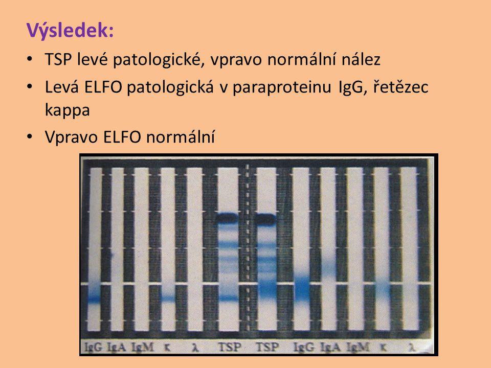 Výsledek: TSP levé patologické, vpravo normální nález Levá ELFO patologická v paraproteinu IgG, řetězec kappa Vpravo ELFO normální