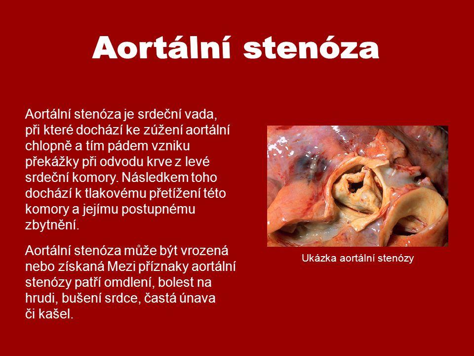 Aortální stenóza je srdeční vada, při které dochází ke zúžení aortální chlopně a tím pádem vzniku překážky při odvodu krve z levé srdeční komory. Násl