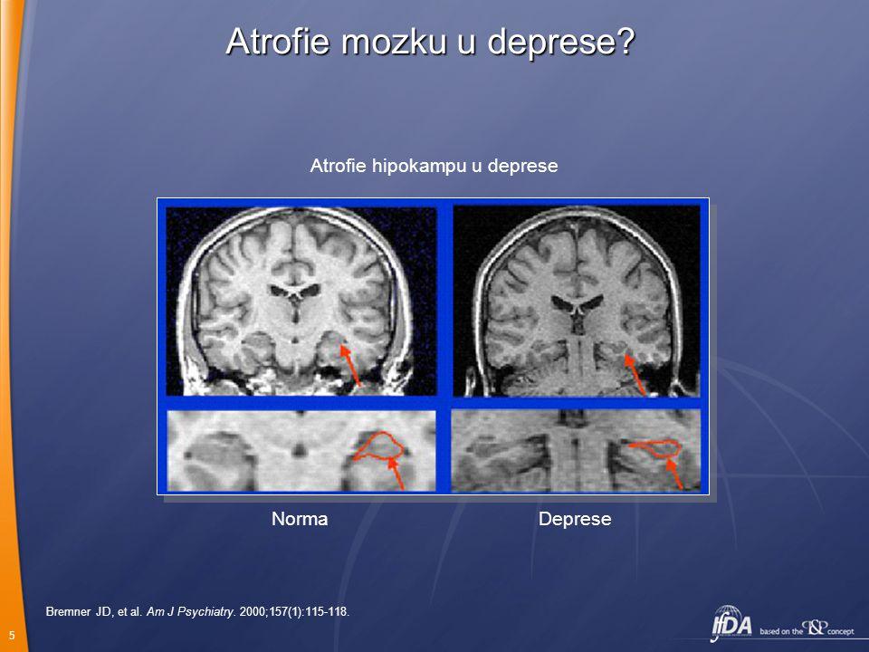 5 Bremner JD, et al. Am J Psychiatry. 2000;157(1):115-118. Atrofie hipokampu u deprese NormaDeprese Atrofie mozku u deprese?
