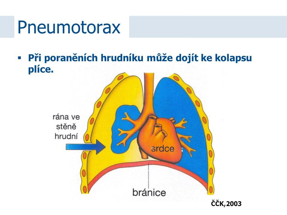  Při poraněních hrudníku může dojít ke kolapsu plíce. Pneumotorax ČČK,2003
