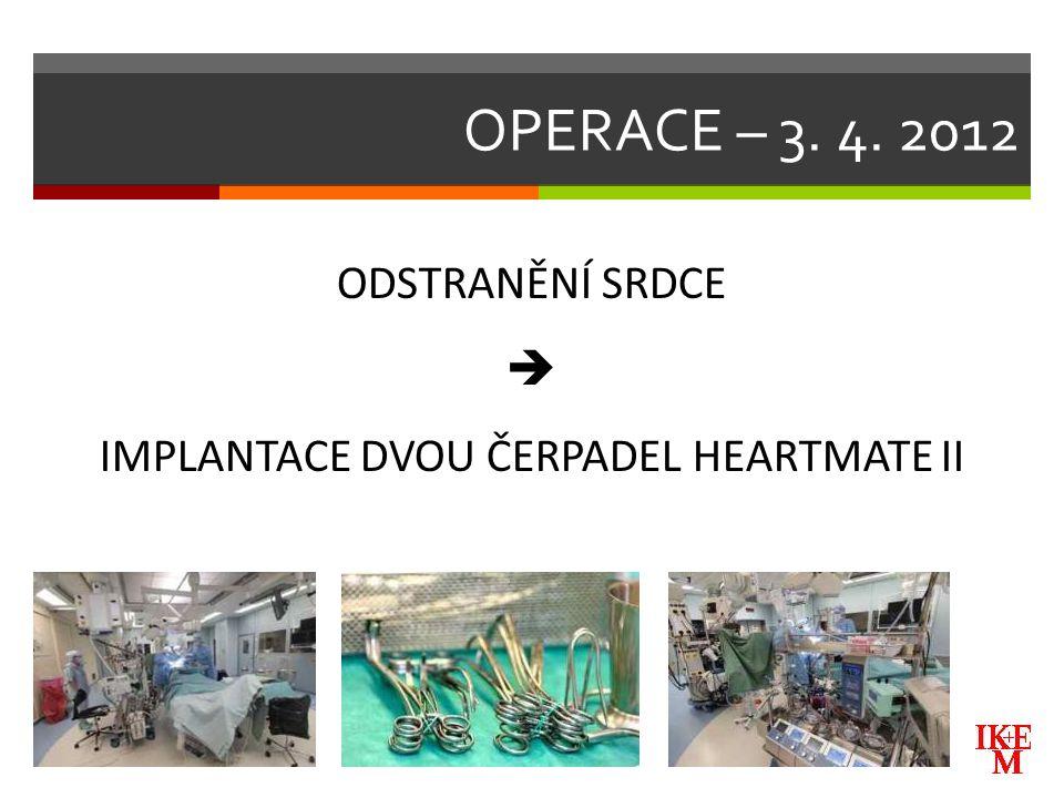OPERACE – 3. 4. 2012 ODSTRANĚNÍ SRDCE  IMPLANTACE DVOU ČERPADEL HEARTMATE II