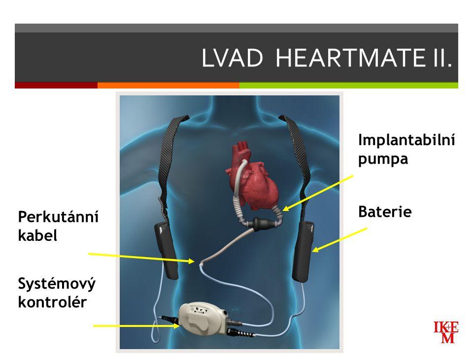 LVAD HEARTMATE II. Implantabilní pumpa Baterie Perkutánní kabel Systémový kontrolér
