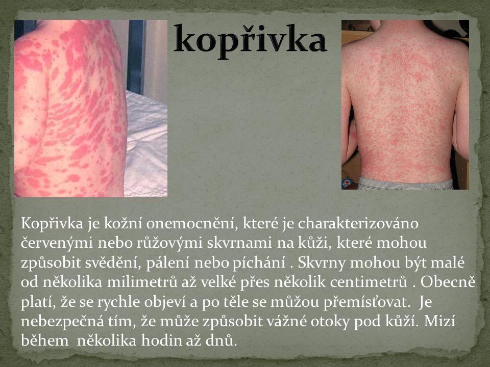 Kopřivka je kožní onemocnění, které je charakterizováno červenými nebo růžovými skvrnami na kůži, které mohou způsobit svědění, pálení nebo píchání.
