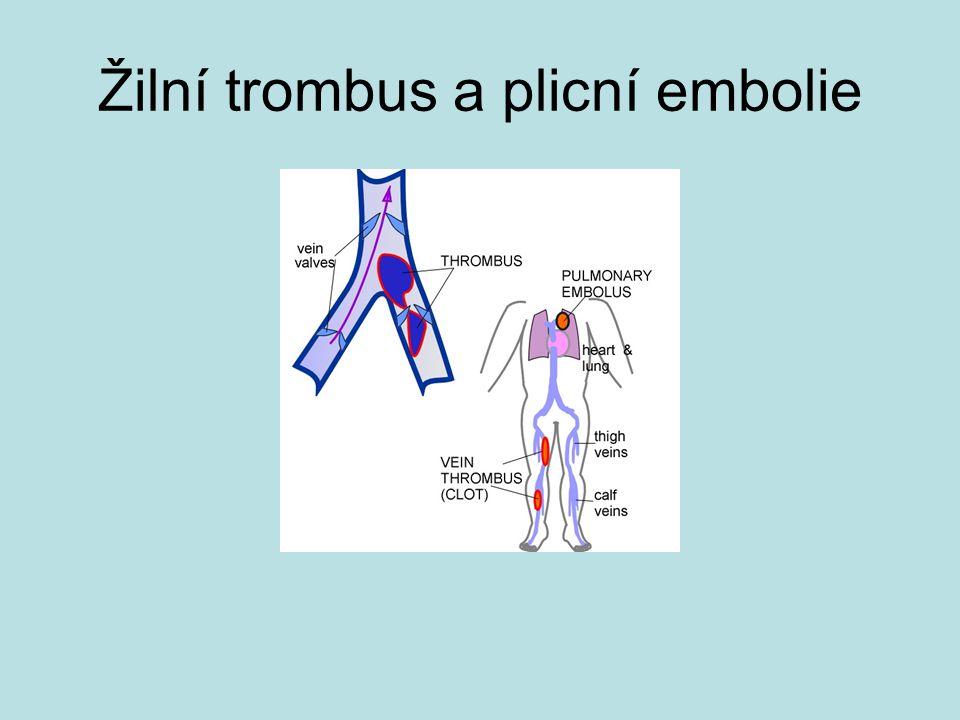 Žilní trombus a plicní embolie