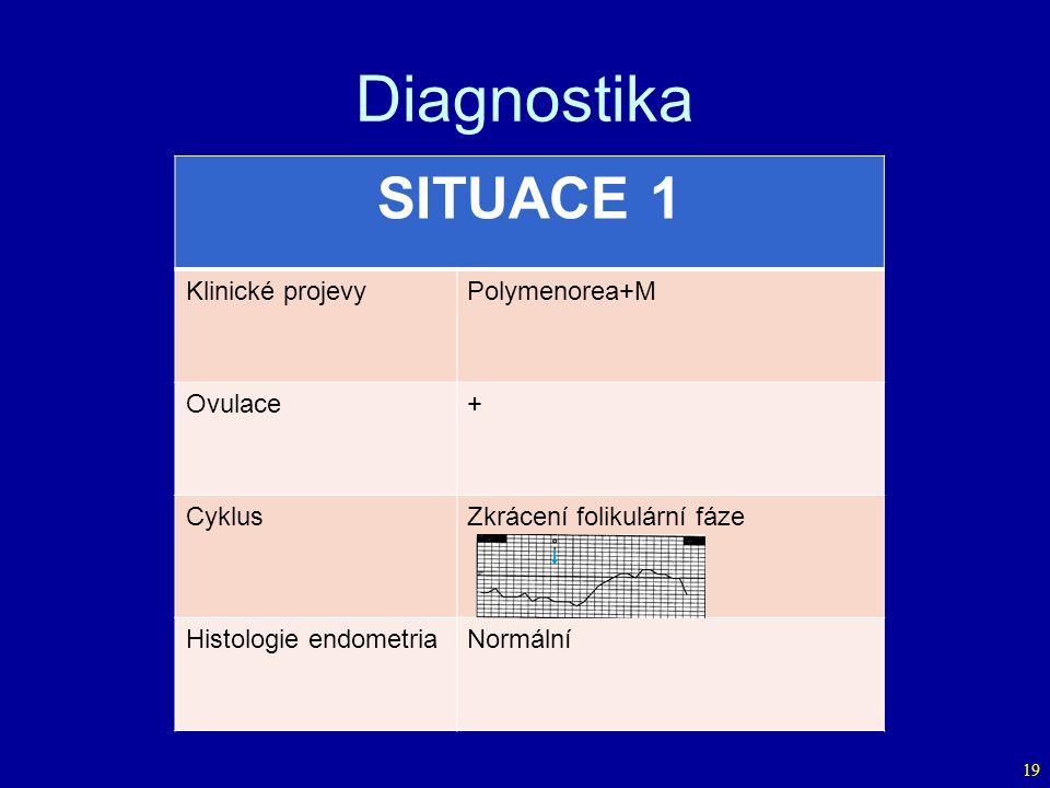 Diagnostika 19 SITUACE 1 Klinické projevyPolymenorea+M Ovulace+ CyklusZkrácení folikulární fáze Histologie endometriaNormální