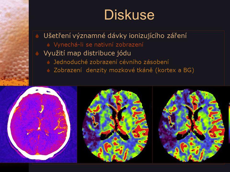 Diskuse  Ušetření významné dávky ionizujícího záření  Vynechá-li se nativní zobrazení  Využití map distribuce jódu  Jednoduché zobrazení cévního zásobení  Zobrazení denzity mozkové tkáně (kortex a BG)