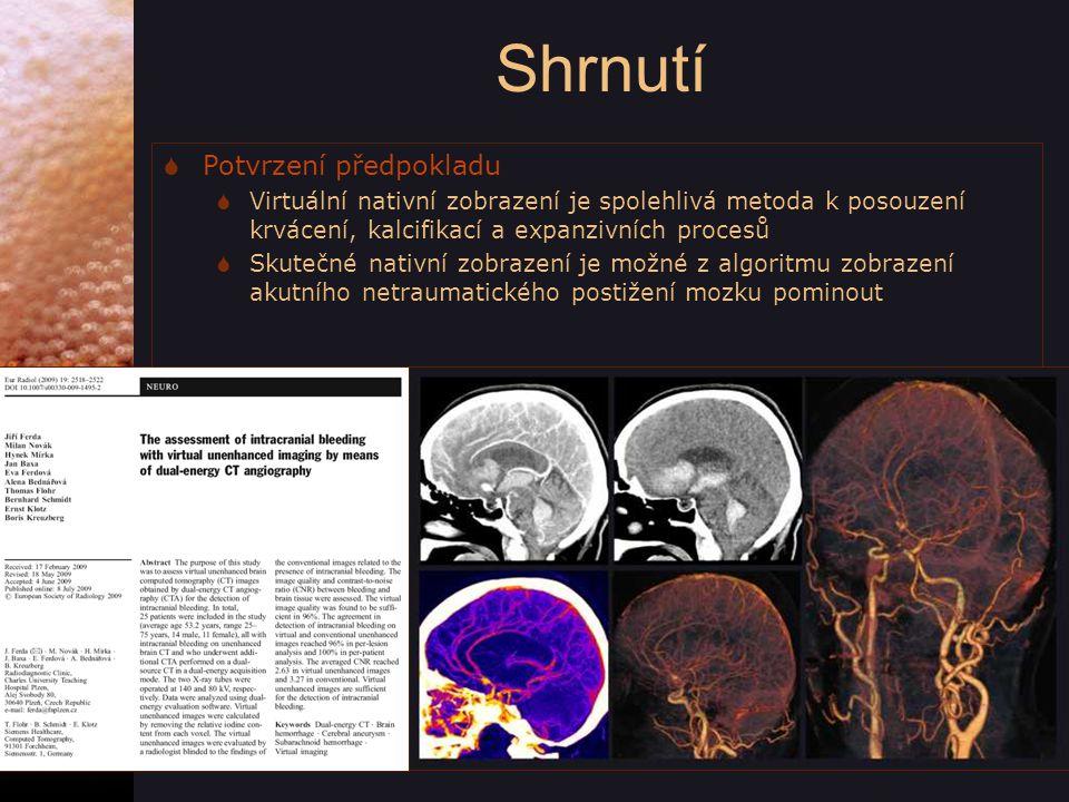 Shrnutí  Potvrzení předpokladu  Virtuální nativní zobrazení je spolehlivá metoda k posouzení krvácení, kalcifikací a expanzivních procesů  Skutečné nativní zobrazení je možné z algoritmu zobrazení akutního netraumatického postižení mozku pominout FLT