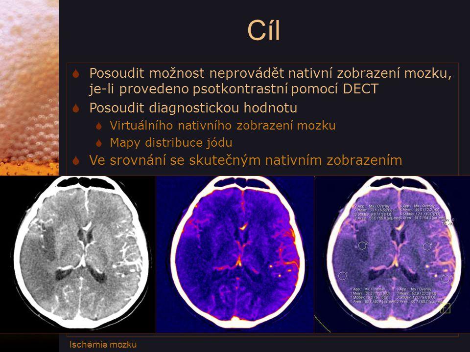 Cíl  Posoudit možnost neprovádět nativní zobrazení mozku, je-li provedeno psotkontrastní pomocí DECT  Posoudit diagnostickou hodnotu  Virtuálního nativního zobrazení mozku  Mapy distribuce jódu  Ve srovnání se skutečným nativním zobrazením Ischémie mozku