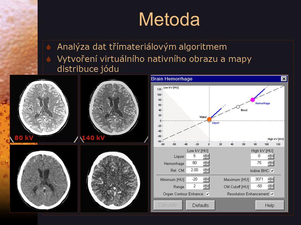 Metoda  Analýza dat třímateriálovým algoritmem  Vytvoření virtuálního nativního obrazu a mapy distribuce jódu 80 kV 140 kV 140 kV