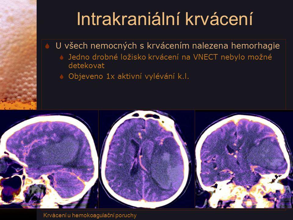 Intrakraniální krvácení  U všech nemocných s krvácením nalezena hemorhagie  Jedno drobné ložisko krvácení na VNECT nebylo možné detekovat  Objeveno 1x aktivní vylévání k.l.