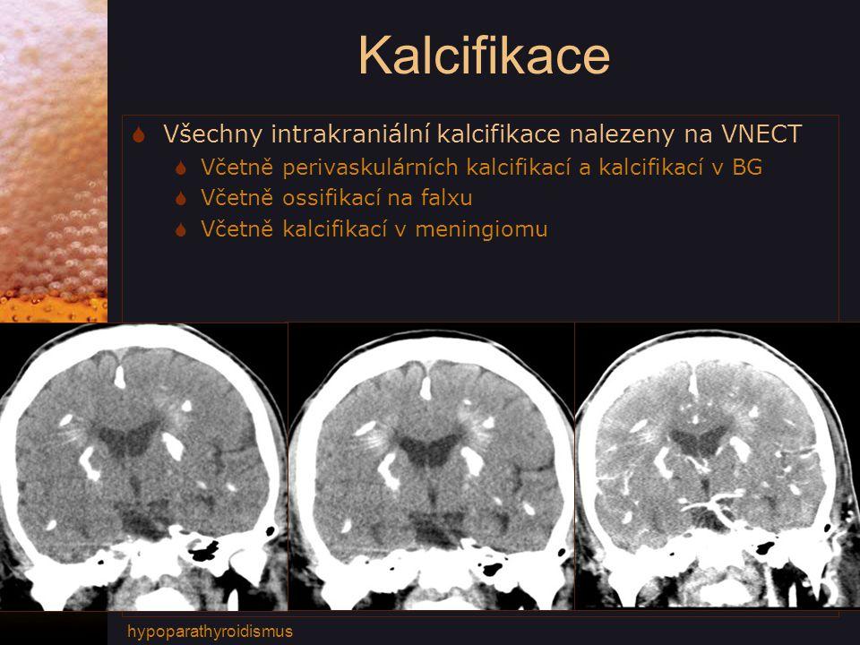 Kalcifikace  Všechny intrakraniální kalcifikace nalezeny na VNECT  Včetně perivaskulárních kalcifikací a kalcifikací v BG  Včetně ossifikací na falxu  Včetně kalcifikací v meningiomu hypoparathyroidismus