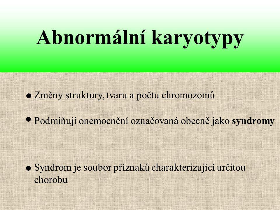 Změny struktury, tvaru a počtu chromozomů Abnormální karyotypy Syndrom je soubor příznaků charakterizující určitou chorobu Podmiňují onemocnění označo