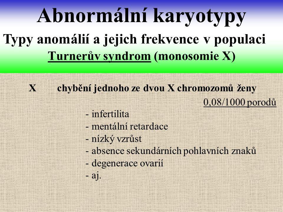 X chybění jednoho ze dvou X chromozomů ženy Turnerův syndrom (monosomie X) Abnormální karyotypy Typy anomálií a jejich frekvence v populaci - infertil